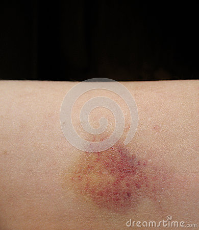 Bruised Arm Isolated on Black