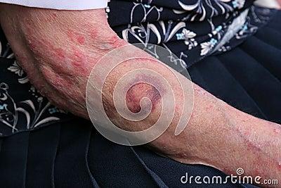 Bruising and Sceriosis