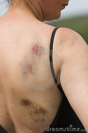 Bruising On Woman