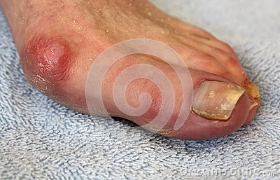 Bunion and Toenail Fungus