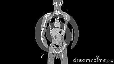 Cały ciało CT, MRI obraz cyfrowy/, antepedium - zrogowaciały samolot zbiory wideo