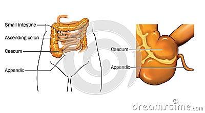 Caecum and appendix