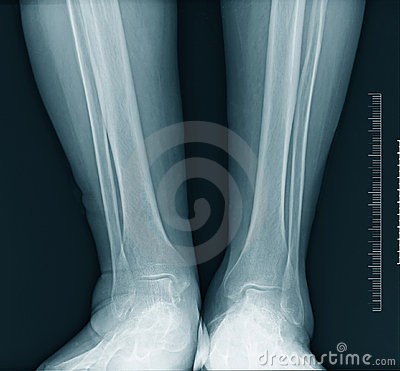 Calf  x-ray