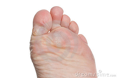 Callus on toes
