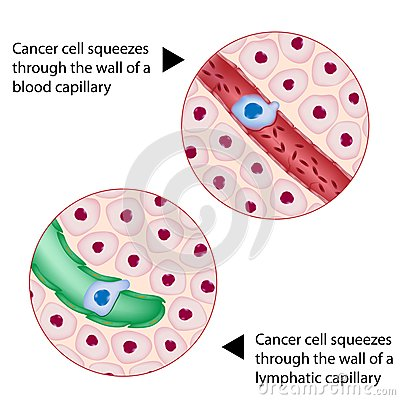 Cancer cell squeezes through vessel