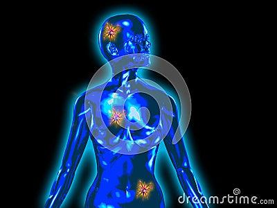 Cancer in female body