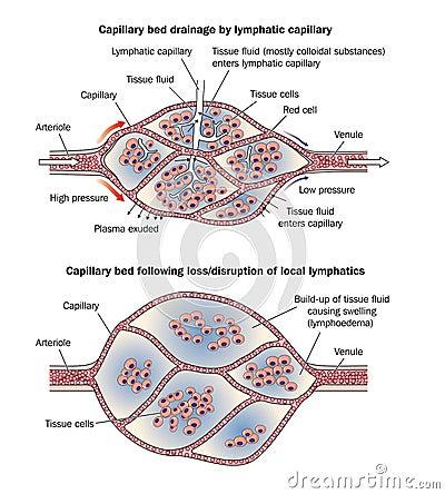 Capillary bed lymphoedema