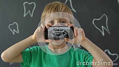 Captura aproximada de um garotinho com dentes de leite desaparecidos mostrando sua foto de raios X dentária Conceito de alteração video estoque