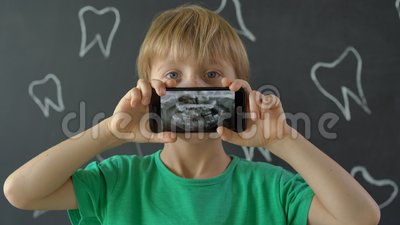 Captura de pantalla de un niño con dientes de leche perdidos que muestran su foto dental de rayos X Concepto de cambio dental inf almacen de video