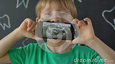 Captura de pantalla de un niño con dientes de leche perdidos que muestran su foto dental de rayos X Concepto de cambio dental inf metrajes