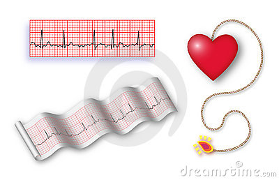 Cardiac time bomb with det cord + 2 EKG strips