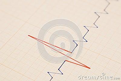 Cardio Graph