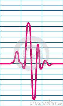 Free Cardiogram Royalty Free Stock Images - 68476229