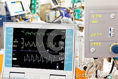 Cardiogram with ECMO