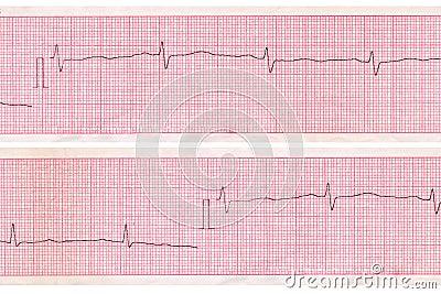 Cardiogram. Heart analysis scheme