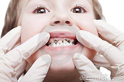 Caries teeth decay Stock Photo