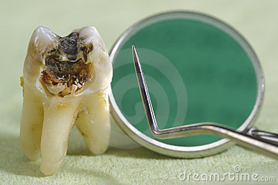 Caries on tooth Stock Photo