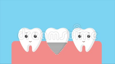 Medical Assistant Selecting Color Of Crown Aesthetic Dentistry Medicine Stock Video Video Of Caries Equipment 123874995 Find & download the most popular crown cartoon vectors on freepik free for commercial use high quality images made for creative projects. dreamstime com