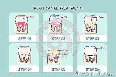 Cartoon Tooth Root Canal Treatment Cartoon Vector