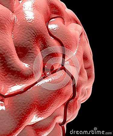 Free Cerebral Aneurysm, Brain Head Stock Photos - 38319013