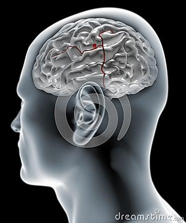 Free Cerebral Aneurysm, Brain Head Stock Image - 38320041