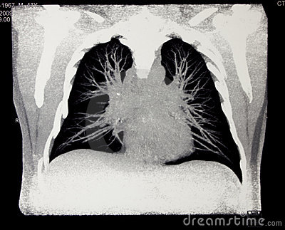 Chest, computed tomography