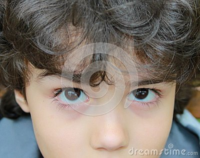 Children  s eyes