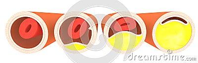 Cholesterol - 4 veins