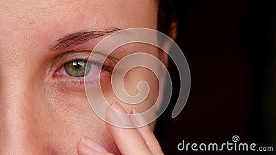 Chory czerwony ludzki oko młoda kobieta Dziewczyna bierze daleko jej szkła, pokazuje czerwonego oko Zmęczeni oczy od komputeru zdjęcie wideo