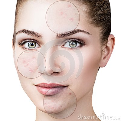 Free Circles Shows Problem Skin Of Young Woman. Stock Photography - 100569382