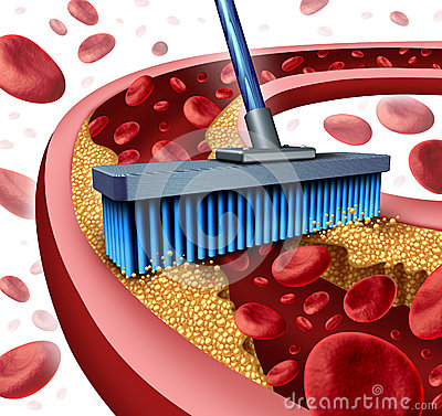 Free Cleaning Arteries Royalty Free Stock Photos - 40214288