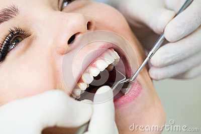 Close-up of female with open mouth during oral checkup at the dentist Stock Photo