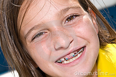 Close up Girl With Braces