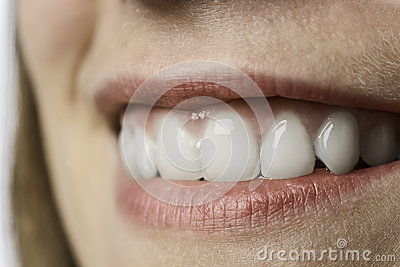 Closeup white teeth of young woman