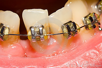 Closing of gap with dental braces
