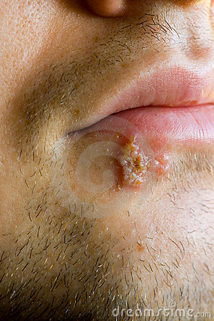 Cold sores (herpes labialis)