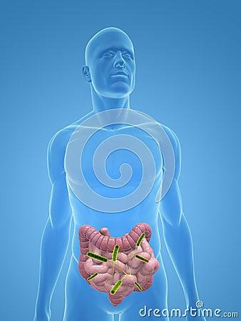 Colon infection