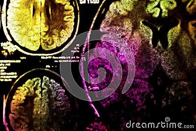 Colorful MRI of brain
