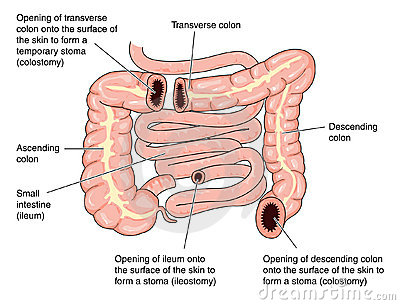 Colostomy sites