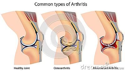 Common types of arthritis