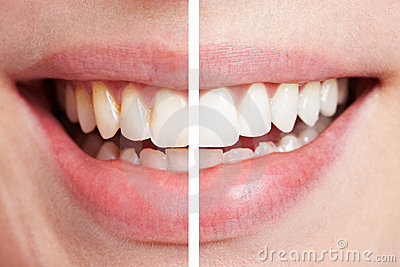 Comparación de dientes antes
