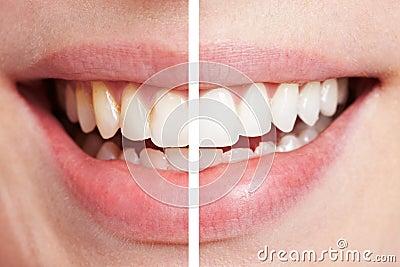 Comparação dos dentes antes