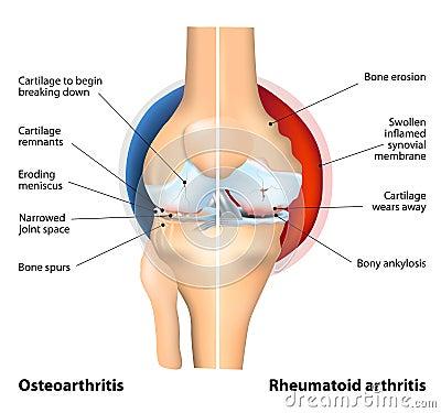 Free Comparison Of Osteoarthritis And Rheumatoid Arthritis Royalty Free Stock Photography - 45431537