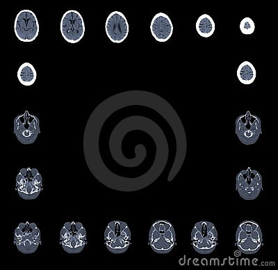 Computed tomography brain