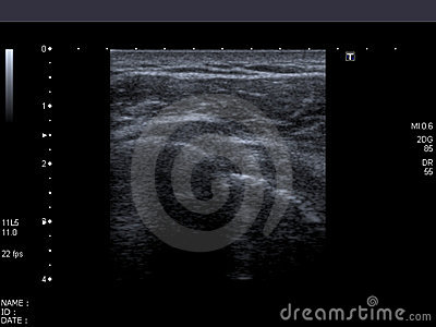 Computerized echography