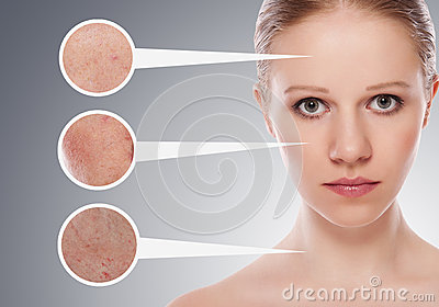 Concept skincare. Skin of woman