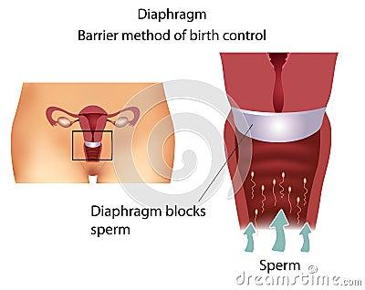 Contraceptive method- Diaphragm