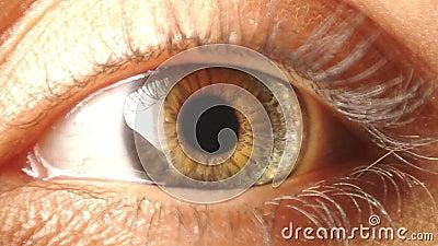 Contratto dell'iride dell'occhio