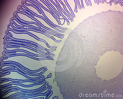 Coprinus Mushroom Section Stained Stock Photo - Image ...
