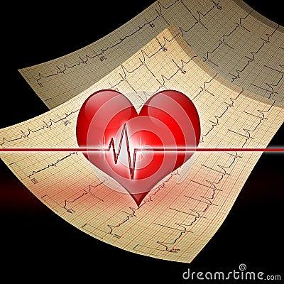Corazón con el ekg